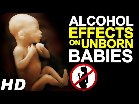 Drinking while pregnant - effects of alcohol on unborn babies | fetal alcohol syndrome
