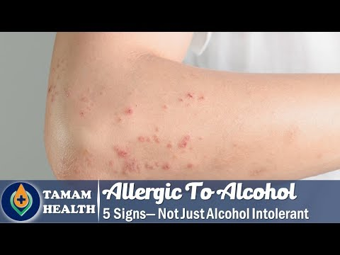 5 signs you're allergic to alcohol — not just alcohol intolerant