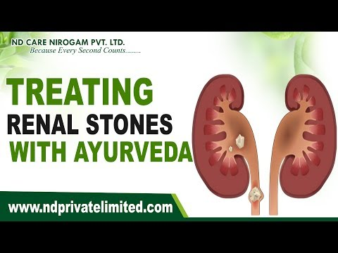 Treating renal stones with ayurveda | natural remedies for kidney stones