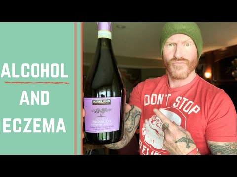 Can you drink alcohol and heal eczema / do i drink