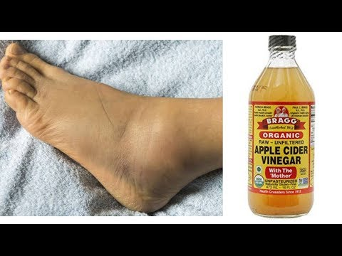 How to reduce swollen feet, legs & ankle using apple cider vinegar || you will be shock!