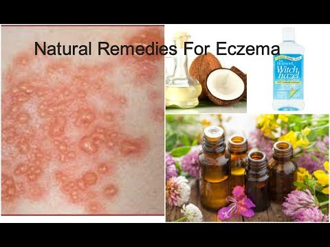 Effective natural home remedies for eczema
